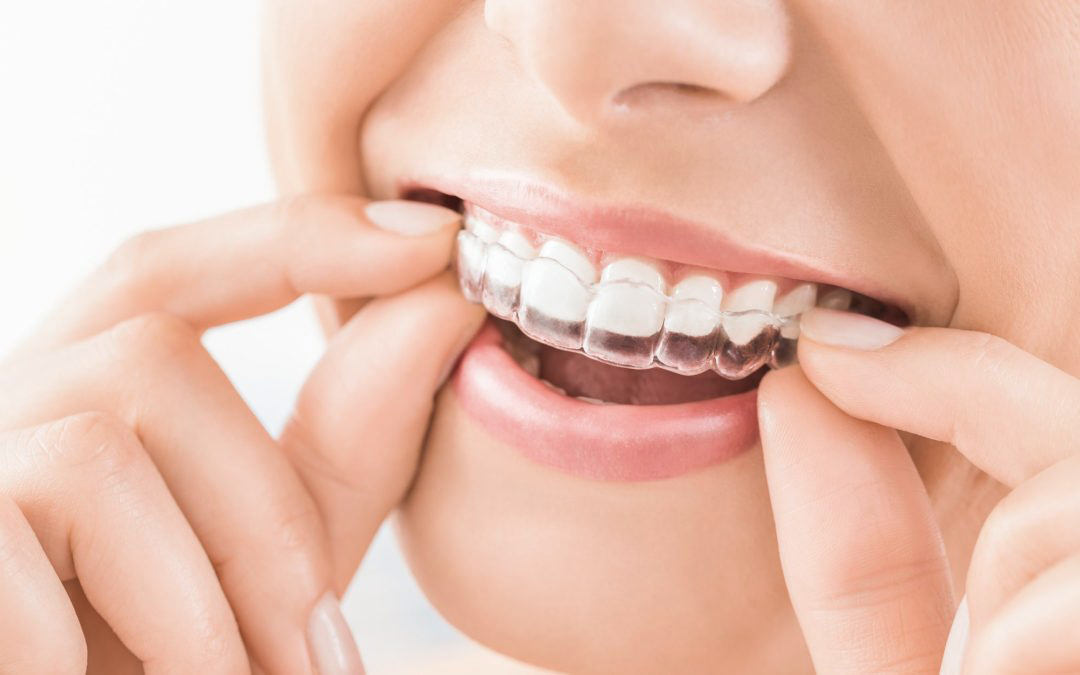 invisalign-clear-aligners-rouse-hill