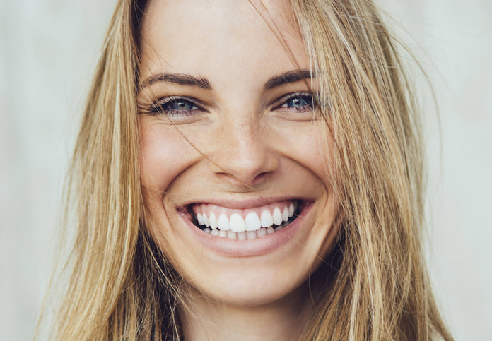 happy girl after smile makeover at the grove dental rouse hill
