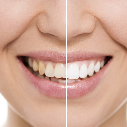 teeth whitening rouse hill