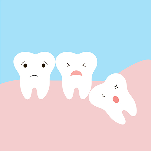 wisdom-teeth-removal-rouse-hill