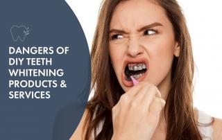 dangers-of-diy-teeth-whitening
