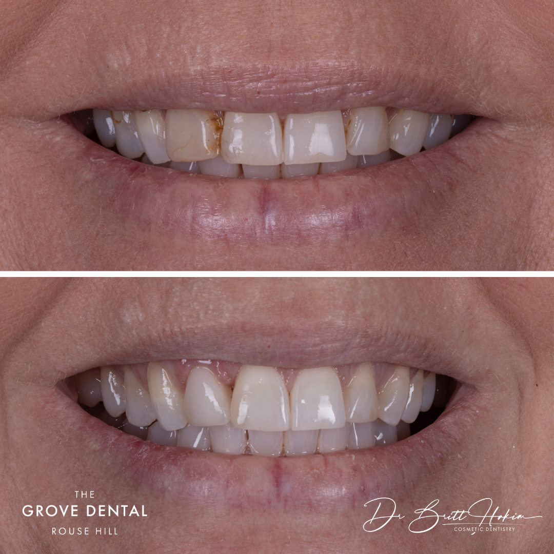 cosmetic-dentisty-before-after-rouse-hill
