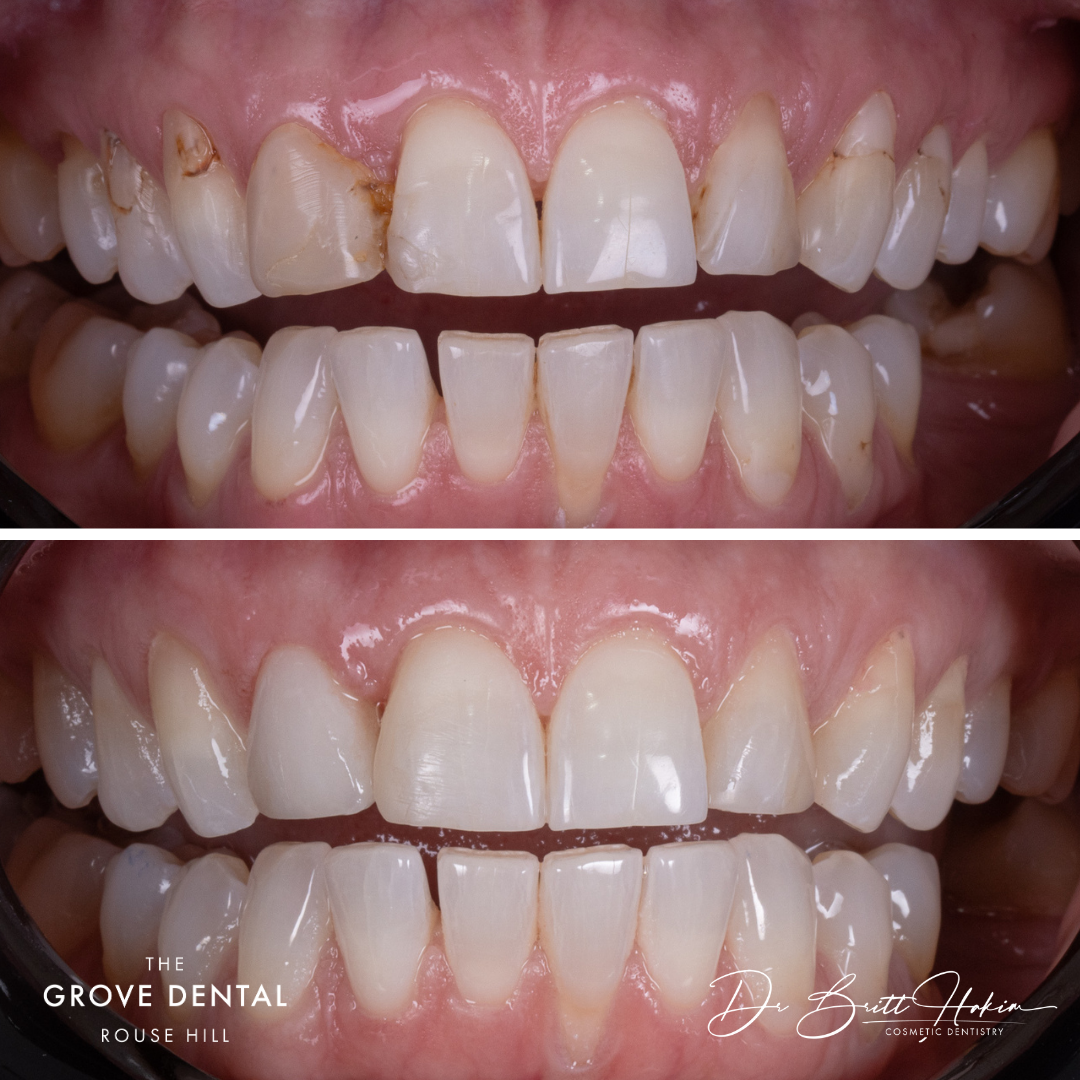 cosmetic-dentisty-before-after-rouse-hill detail