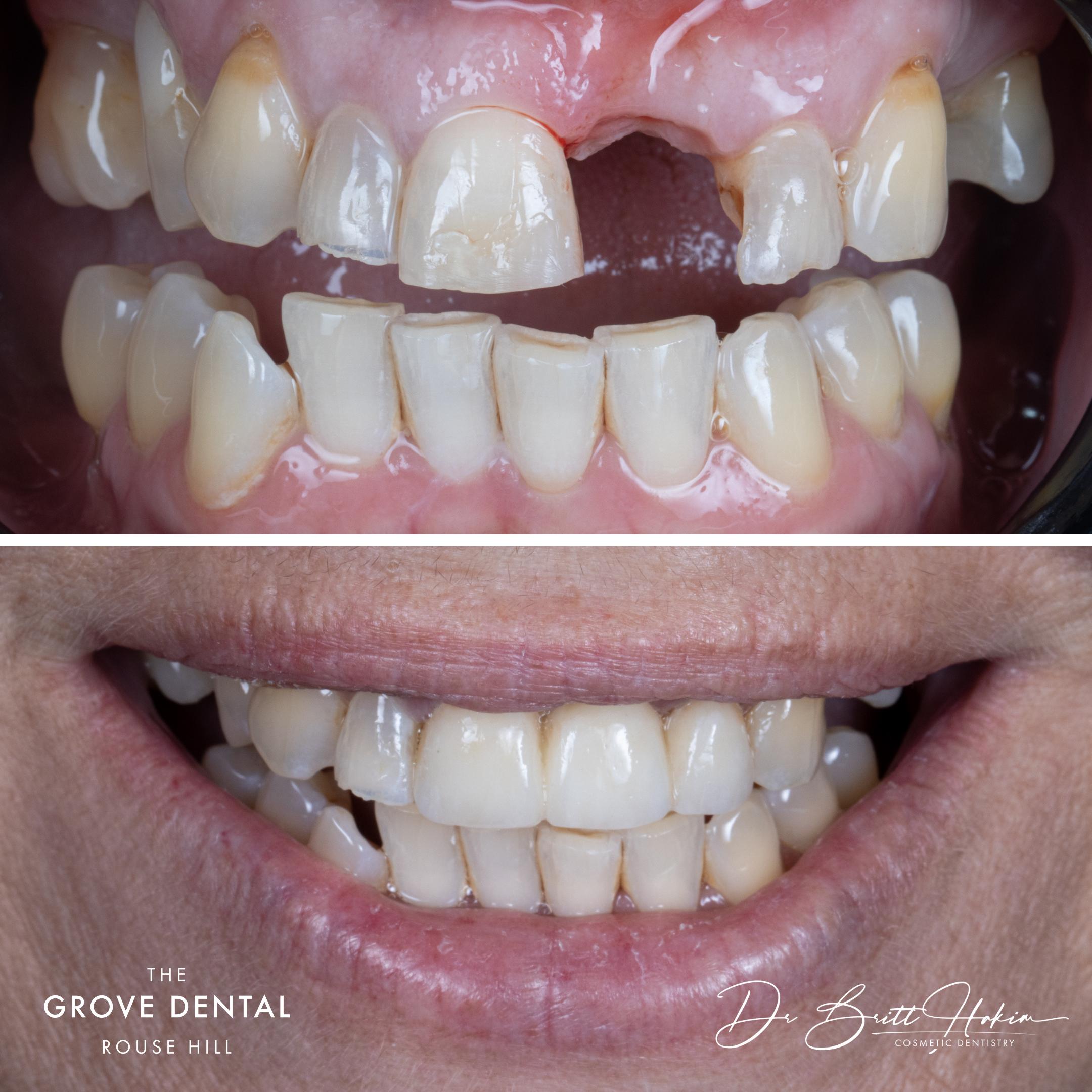 dental bridge for missing teeth