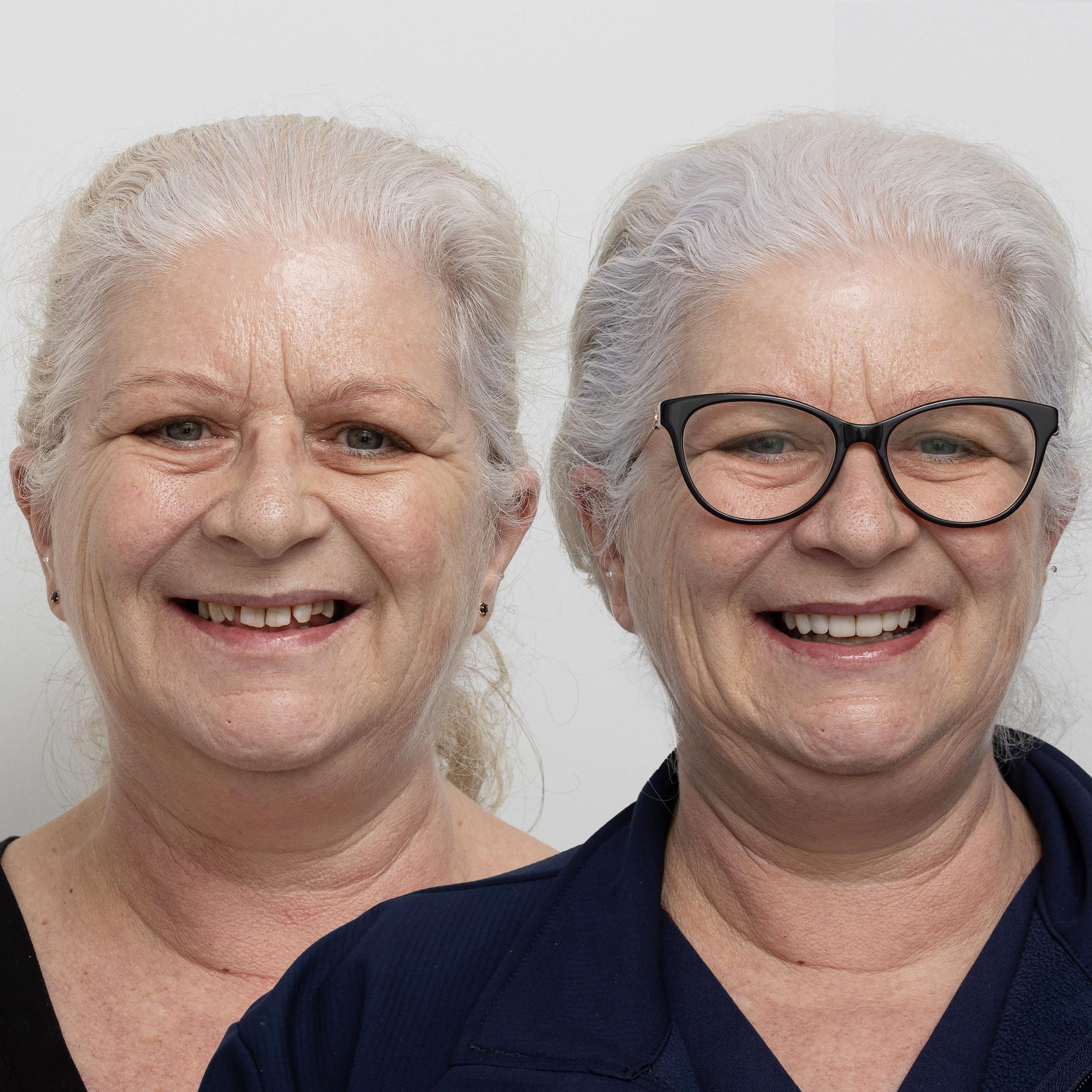 smile-makeover-veneers